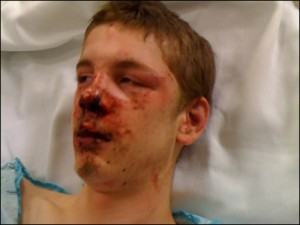 Seattle Teen Beaten by Black Muslim, Ahmed Mohamed - Beating Classified as Hate Crime
